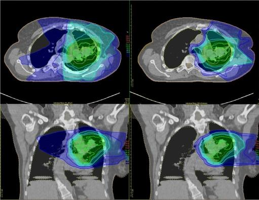 Is Proton Therapy Safer than Traditional Radiation?